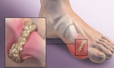 Studies have shown that Chinese medicine almost no side effects in the treatment of gout